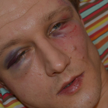 Vasyl Cherepanyn heavily beaten by paramilitary thugs